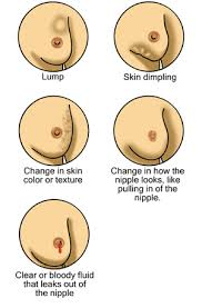 breast cancer 3]