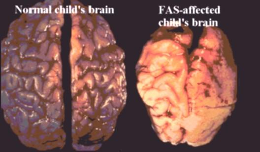 fetal-alcohol-syndrome-brain