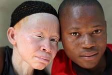 albino 1